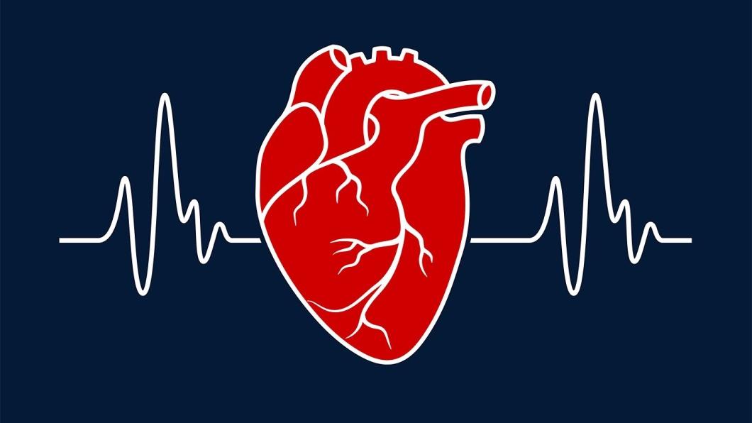 Life After Quadruple Coronary Bypass